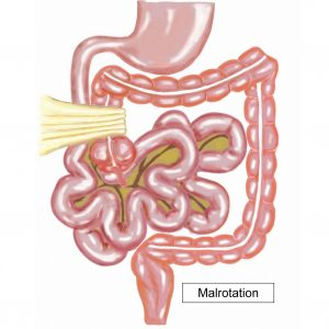 Malrotation diagram 2 of 4