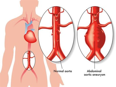 DIAGRAM OF NORMAL AORTA AND ANEURYSMAL AORTA